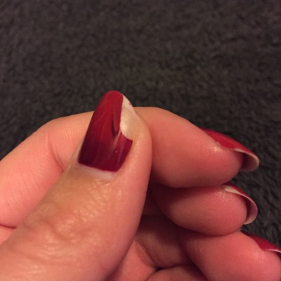 The thumb nail chip that was still semi-attached